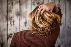 Accepting Hair Loss at a Young Age